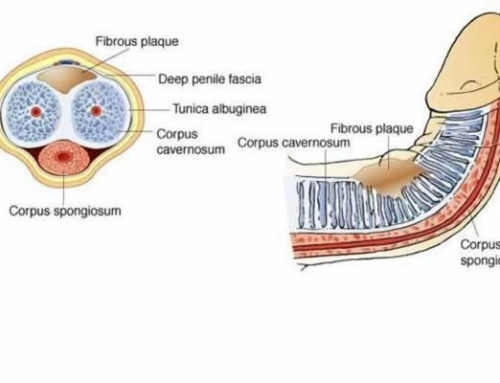 Benefits of Penile Traction for Peyronie's Disease