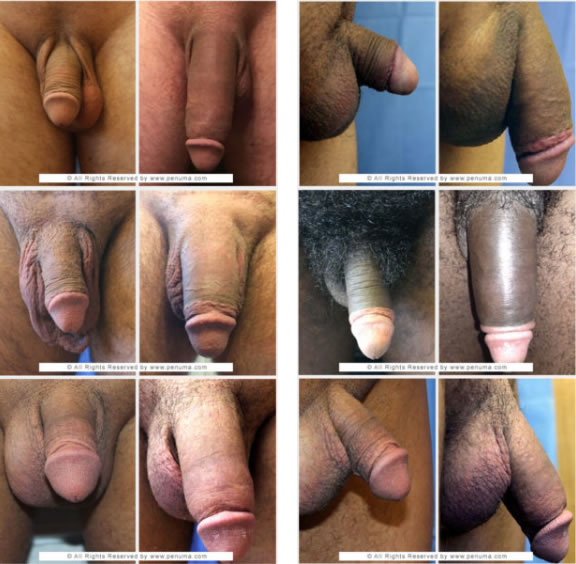 Penuma - Penile Implant for Men